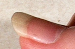 Fingernail Splinters Images - Reverse Search